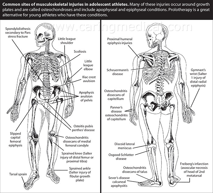 This figure shows common adolescent injury sites.