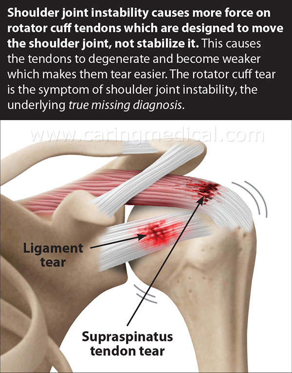 Shoulder joint instability causes accelerated and stressful force on the rotator cuff tendons. This stress and force puts great strain on the rotator cuff tendons which move the shoulder joint through normal range of motion. The strain on the tendons causes weakness, fraying, tearing and whole joint capsule instability. Rotator cuff tear caused by chronic wear and tear is a symptom of shoulder instability.