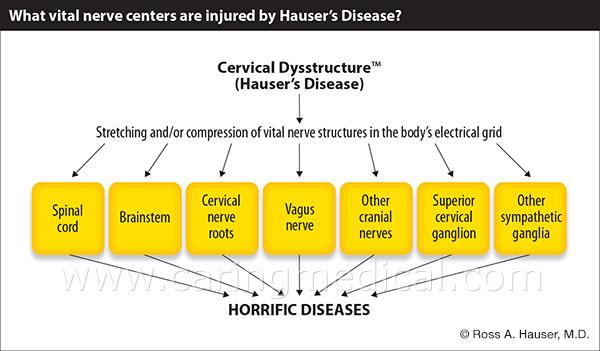 cervical dysstructure