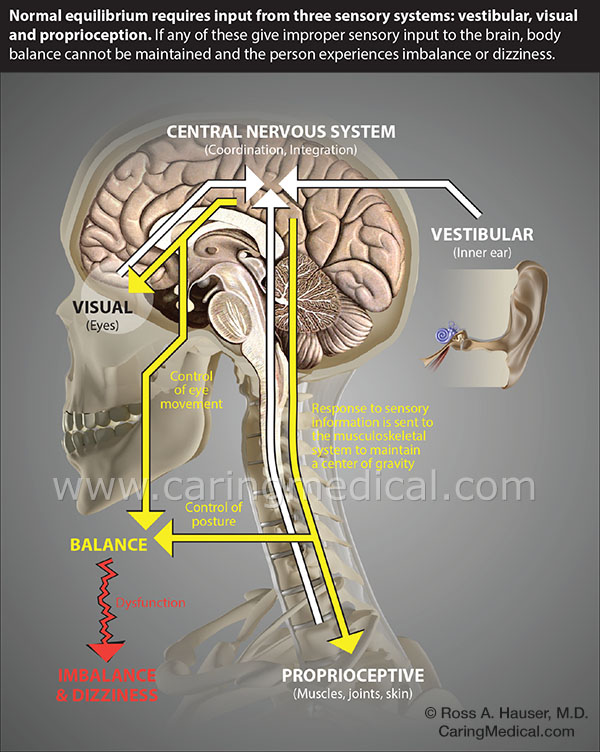 """The vestibular systemis the body's sensory system that regulates balance and spatial orientation (the understanding of where you are in your environment). It sits in the inner ear and works by adjusting fluid levels that act as the balance mechanism. In human beings, we set our awareness of our place in space by using the ground as the constant place of orientation. We can keep our balance when we walk because we understand the ground is the constant and our vestibular system makes constant involuntary adjustments to """"keep things steady,"""" to prevent motion from creating dizziness or sway."""