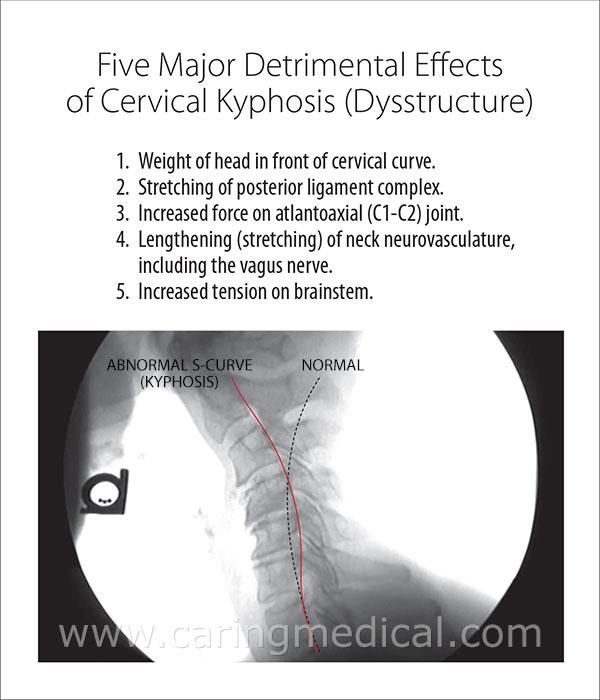 Five major detrimental effects of cervical kyphosis (dysstructure)