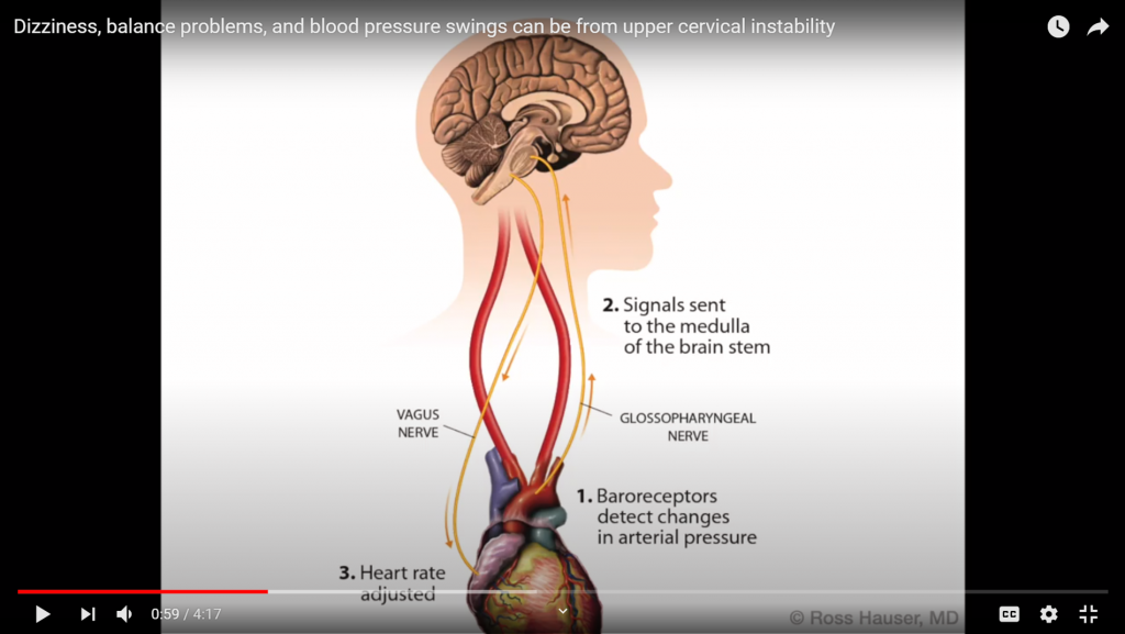 This image describes the impact of compression of the vagus nerve and the glossopharyngeal nerve on heart rate and blood pressure