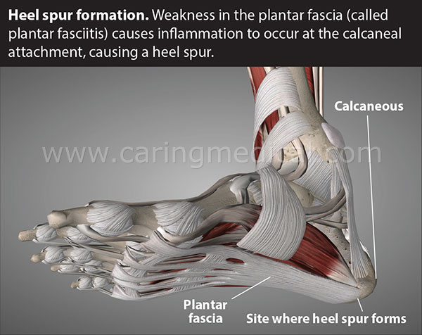 Heel spur formation. Weakness in the plantar fascia (called plantar fasciitis) causes inflammation to occur at the calcaneal attachment, causing a heel spur.