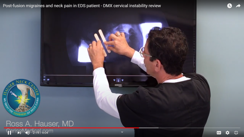 Dr. Hauser demonstrates that the alignment at C1-C2 is off as demonstrated by the amount of overhang between the C1-C2 vertebrae when the patient moves their head to the left and then again when the patient moves their head to the right.