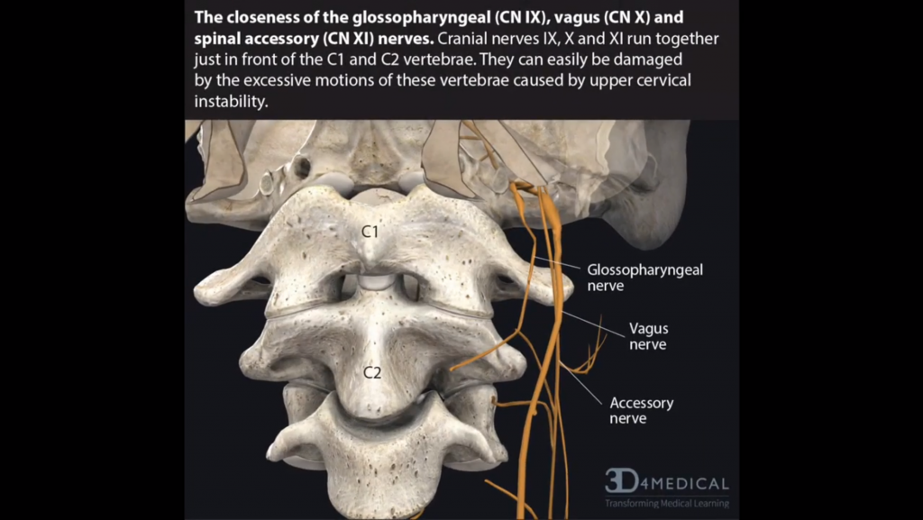 This image displays the close proximity of the vagus nerve, the glossopharyngeal nerve, and the spinal accessory nerve to the C1-C2 vertebrae. This proximity makes compression of these nerves common in cervical spine instability
