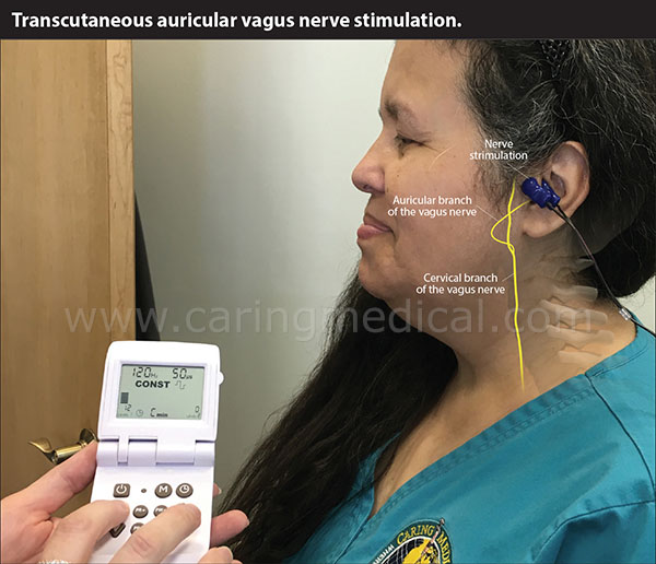Vagus nerve stimulators can stimulate the nucleus tractus solitarius. When food touches your mouth, your body begins sending chemical and mechanical messages to stimulate the gastrointestinal tract to prepare the digestive system for the food intake. The vagal nerve conveys primary afferent information from the intestinal mucosa to the brain stem. Activation of vagal afferent fibers results in inhibition of food intake (Sends signals to tell you to stop overeating), gastric emptying, and stimulation of pancreatic secretion.