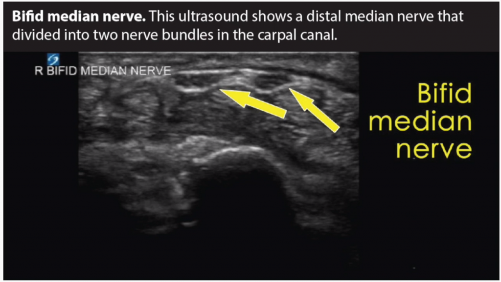 """This is an ultrasound image of a carpal tunnel patient's bifid median nerve. Bifid or """"splitting"""" of the nerve is somewhat rare but is seen often enough in carpal tunnelsyndrome patients. The splitting can occur as a result of wrist instability and may be the cause of numbness and other nerve related problems. In some patients the bifid median nerve remains asymptomatic."""