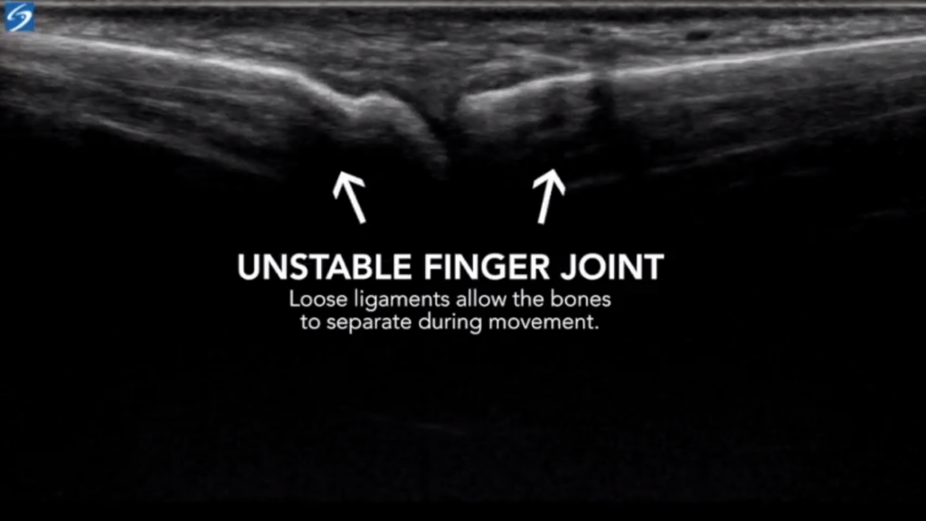 In this ultrasound image we demonstrate an unstable finger joint. An unstable finger joint leads to osteoarthritis and the possible development of trigger finger. This image demonstrates that loose and damaged ligaments (ligament sprains) allow the bones to pull away from each other and can stretch tendons, fascia, and other soft tissue.