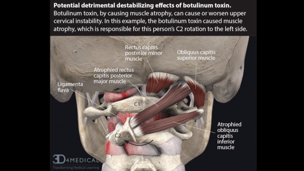 When you get botulinum toxin injections it can cause atrophy of muscles. If you have an injection of botulinum toxin into a muscle in your neck you maybe limiting or preventing that muscle from protecting you from cervical instability. If the botulin toxin affects the obliquus capitis inferior muscle, the muscle that helps stabilize the C2, that vertebrae will rotate out of its natural position and can compress the vagus nerve it can cause a pinching of the C2 nerve root.