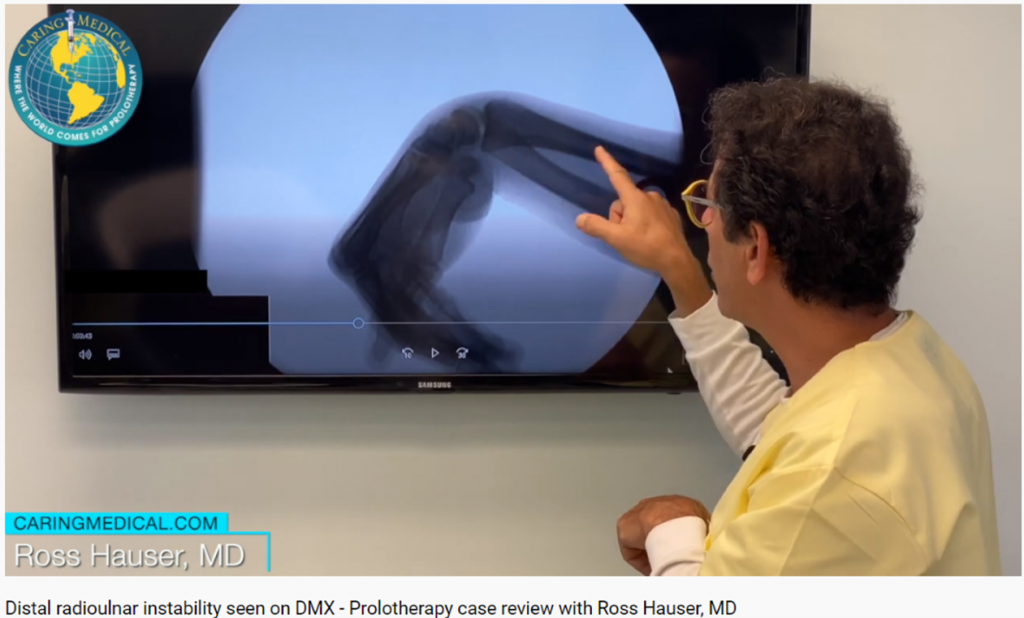 In this image from the video Dr. Hauser demonstrates a case of severe distal radioulnar instability, a condition that is routinely overlooked in wrist pain examinations. Here the ulnar and radius, the two forearm bones that meet at the wrist as seen to be greatly separated at the wrist when the are suppose to stay together. This is a tell tale sign of ligament damage causing wrist instability.