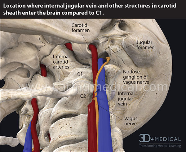 Internal jugular vein in carotid sheath enter the brain