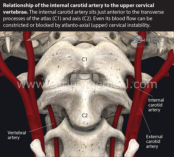 RELATIONSHIP OF THE INTERNAL CAROTID ARTERY TO THE UPPER CERVICAL VERTEBRAE