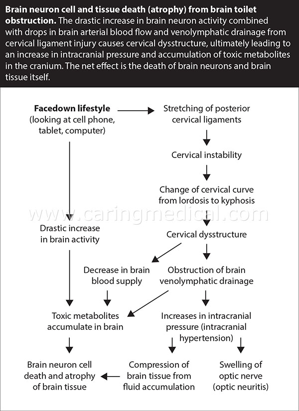 BRAIN NEURON CELL AND TISSUE DEATH (ATROPHY) FROM BRAIN TOILET OBSTRUCTION