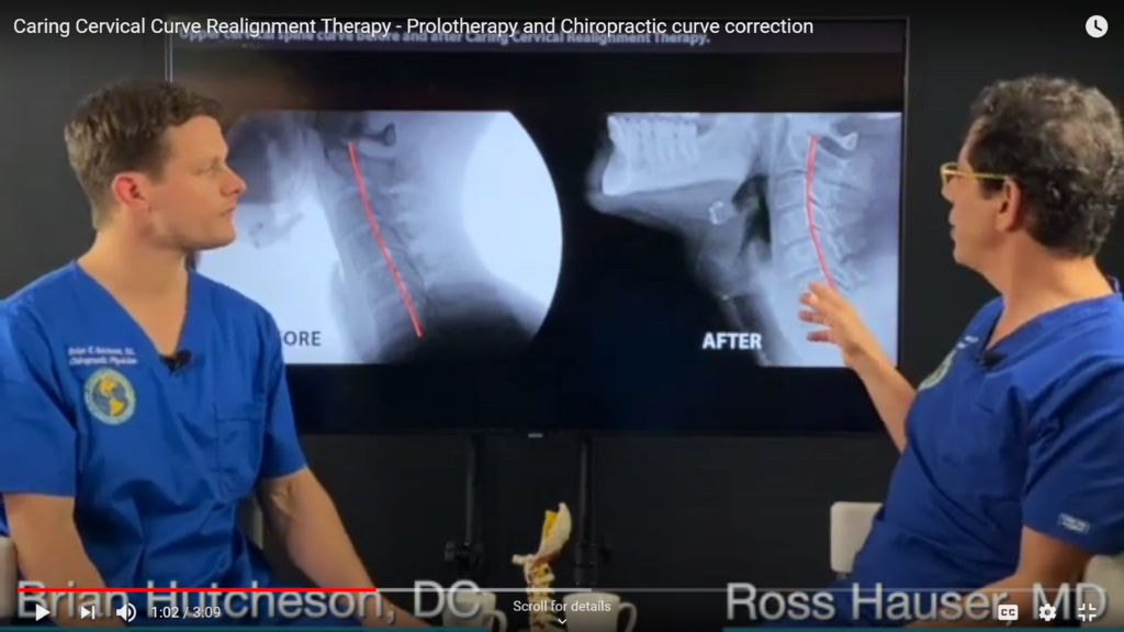 In this image from the video, Dr. Hauser shows the end result of treatment, a restored cervical spinal curve.