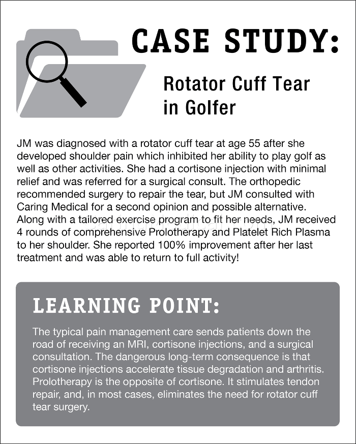 In this case study we have a patient who is diagnosed with a rotator cuff tear. She is a 55 year old patient who developed shoulder pain which inhibited her ability to play golf as well as other activities she enjoyed. Her treatments included cortisone injections which provided minimal relief. The patient was referred to surgery and opted out to peruse regenerative medicine injections including Prolotherapy and platelet rich plasma. She she reported 100% Improvement. 100% improvement is not a typical result but some level of improvement in good candidates for treatment are routinely seen.