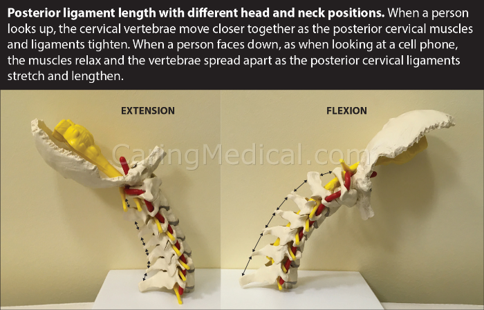 In this image we we are examining the posterior ligament length with different head and neck positions. When a person looks up, the cervical vertebrae move closer together as the posterior cervical ligaments and muscles tighten. When the person faces down, the muscles relax and the vertebrae spread apart as the posterior cervical ligaments stretch and lengthen.