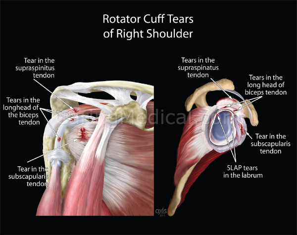 In this image we see the many types of tears that can occur in the rotator cuff. In many patients we see they have many tears or lesions simultaneously. Here we see a tear in the supraspinitus tendon; in the long head of the biceps tendon; a tear in the subscapularis tendon; and concurrent SLAP tear of the labrum.