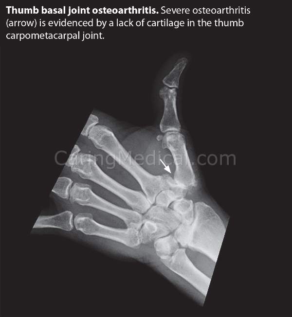 In this x-ray image the arrow points to severe osteoarthritis in the carpometacarpal joint. This is evidenced by the lack of cartilage at the joint. Thumb arthritis often involves inflammation.
