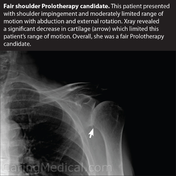 In this x-ray we see a patient with shoulder impingement and moderately limited range of motion with abduction and external rotation. The x-ray image reveals a significant decrease in cartilage which limited the patients shoulder and arm range of motion. This patient was considered a fair candidate for treatment and realistic expectation of treatment outcomes should be expected.