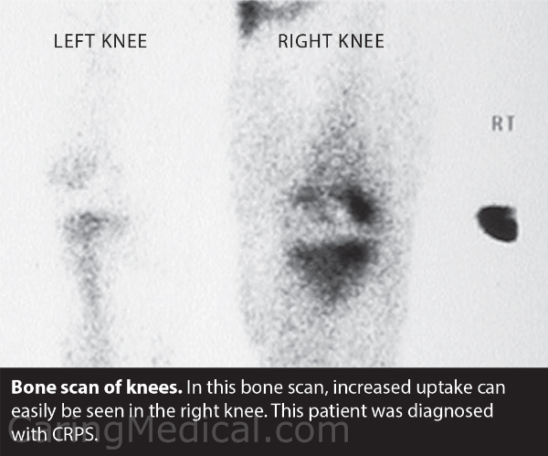 In this bone scan, the problems of ischemia and vasomotor disturbances (this problems of blood flow and symptoms that this may bring) in seen in a patient diagnosed with Complex Regional Pain Syndrome.