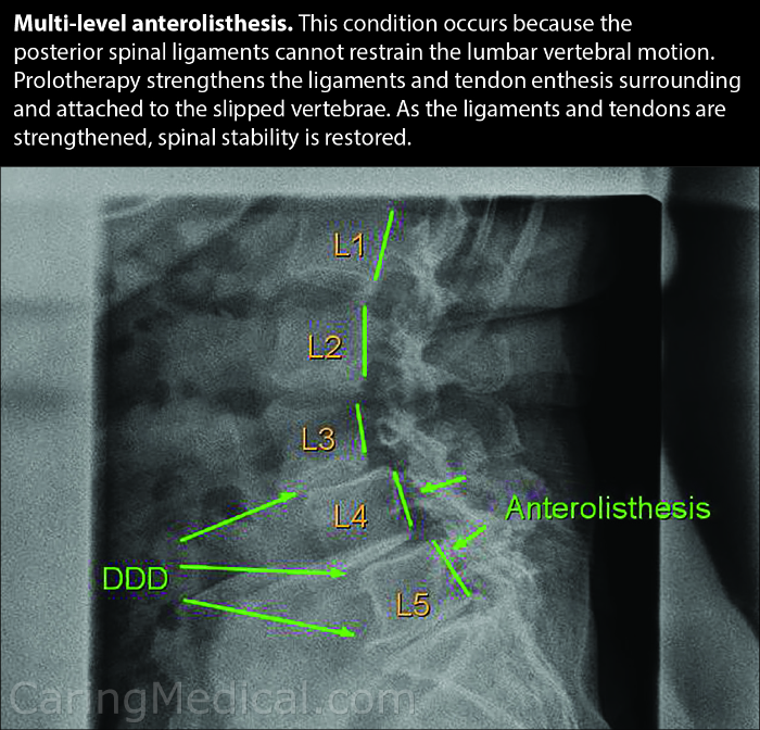 Multi-level forward slippage of the vertebra is known as anterolisthesis. This condition occurs because the posterior spinal ligaments cannot control the motion of the lumbar vertebrae. This inability to control the vertebrae movement is spinal instability that leads to slipped, herniated and bulging discs and degenerative disc disease. Prolotherapy is an injection of simple dextrose that can help treat this condition by strengthening the ligaments and tendon enthesis (or the attachments) surrounding and attached to the slipped vertebrae. As the ligaments and tendons are strengthened, spinal stability is restored, pain is alleviated.