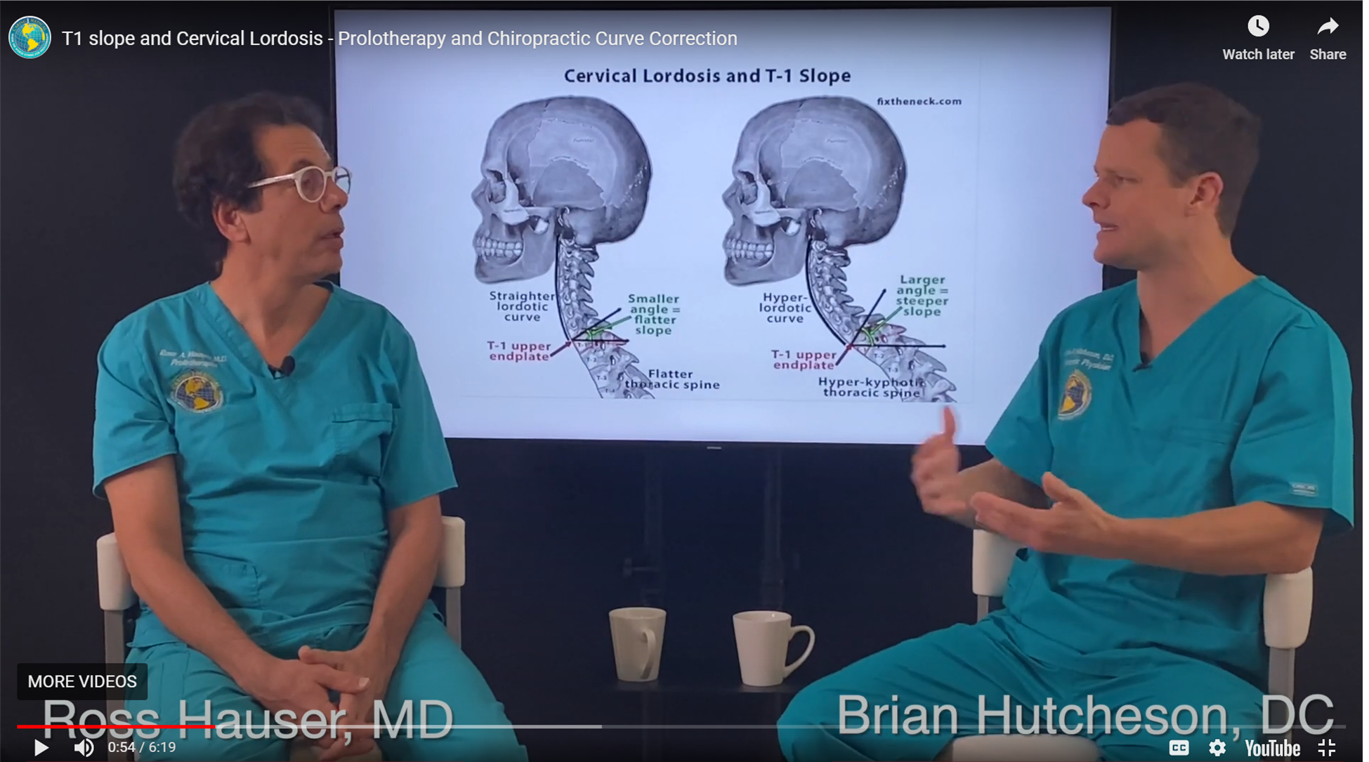 In this still photograph from the video Dr. Hutch, a background illustration demonstrates that C7/T1 Slope is too low, you will have a very flat curve spine, and a loss of curvature. If the angle is too steep, your head will jut out forward ahead of the rest of your body and stress, not only the cervical spine but the mid-back thoracic spine and the lumbar spine.