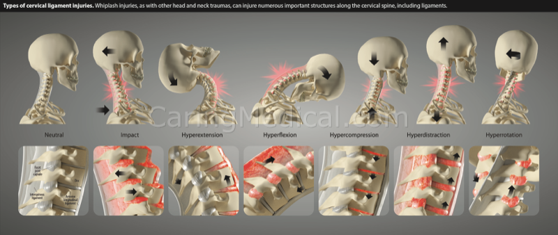 Types of cervical injuries