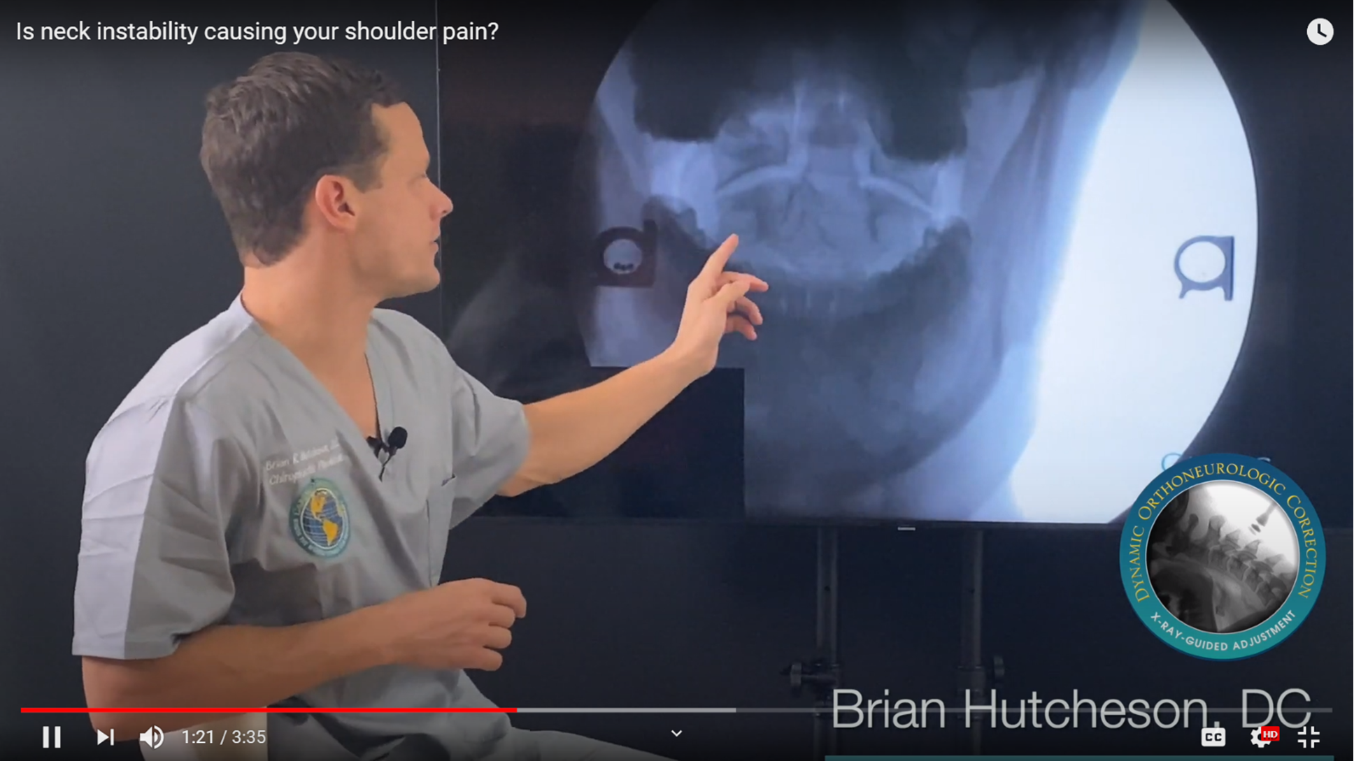 In this still from the video, Dr. Hutcheson describes the DMX image of this patient with unresolved shoulder pain that our team suspected was originating in his cervical spine. Facing the DMX machine, the patient opens his/her mouth to reveal a clearer image of what is happening at the C1-C2 vertebrae and if a malalignment in these vertebrae are causing shoulder pain.