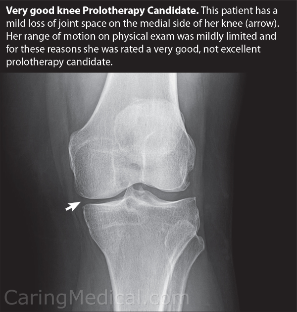 In this x-ray image we can see that this patient is suffering from a mild loss of joint space. This limited the patients range of motion but we still considered a patient a very good candidate for Prolotherapy injections.