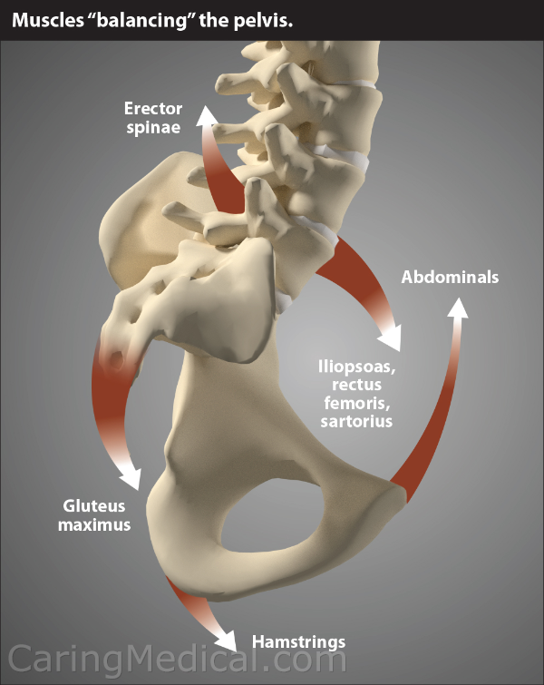 "In this illustration we see the muscles that help balance the pelvis and keep our body in proper alignment. Is is typically these muscles that spasms and cause pain when there is spinal instability in the lumbar spine caused by lumbar ligament damage, weakness and laxity. The erector spinae is comprised of three muscles, the Iliocostalis, the longissimus, and the spinalis. This muscle complex attaches the base of the skull to the pelvis. As the name implies, the Erector spinae keeps the spine erect. The abdominals are the four main muscle groups sometimes referred to as part of the ""core muscles."" The transversus abdominis stabilizes the trunk and are often the key to helping back pain patients in physical therapy. The rectus abdominis or ""six pack,"" muscles. These muscles connect the rib cage to the pelvis. The external oblique muscles and internal oblique muscles –the muscles of the abdominal core that provides twisting motion."