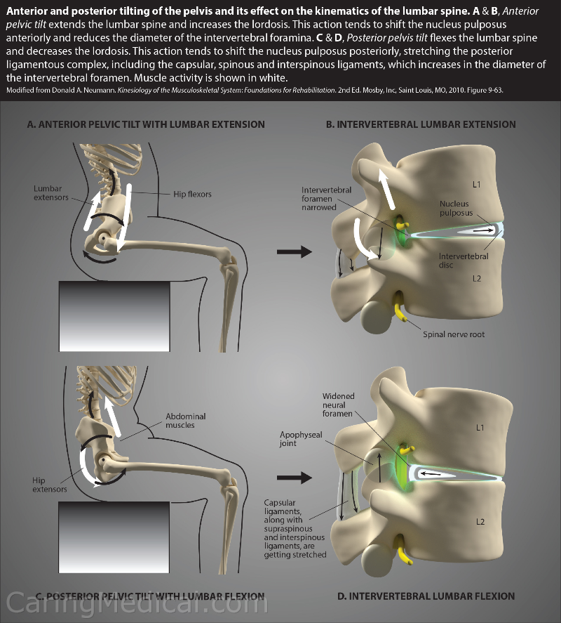 In this illustration below we see many things happening. All these things lead to pain and loss of function. What we are going to be looking at is the Anterior (front side) and Posterior (back side) tilting of the pelvis and its effects on the kinematics (movement) of the lumbar spine. In the A and B illustrations (A) Anterior pelvic tilt with lumbar extension and (B) intervertebral lumbar extension, we see the the frontward or anterior pelvic tilt impacts into the lumbar spine and increases the lumbar lordosis or loss of the natural spinal curvature. This actions tends to shift the nucleus pulposus anteriorly and reduces the diameter of the intervertebral foramina. In other words and more simply, creates a bulging or herniated disc in the front and disruption of the spinal curve in the back. Pain at front and back. In the C and D illustration components of this illustration we have posterior pelvis tilt which flexes the lumbar spine and decreases the lordosis. (Unnatural alignment of the spine again creating a loss of lordosis situation). When this happens, this tends to shift the nucleus pulposus posteriorly, stretching the posterior ligament complex including the capsular ligaments, the spinal ligaments, and the interspinous ligaments. All this contributing to  and reduces the diameter of the intervertebral foramina (a stenosis type of pinching on the nerves). In other words and more simply, creates a bulging or herniated disc in the back and disruption of the spinal curve in the front. Pain at front and back.
