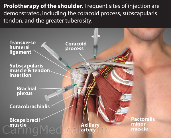 In this illustration, the areas of where Prolotherapy injections are given is demonstrated. This includes the biceps bracii muscle attachment which moves the shoulder and the forearm. Transverse Humeral Ligament which works with the biceps brachii muscle to provide shoulder stability.