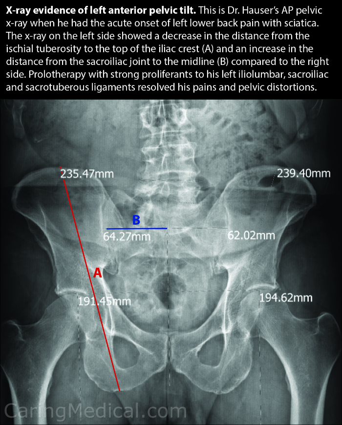 In this image we see an x-ray of a patient. The x-ray is of Dr. Ross Hauser's pelvic tilt. Dr. Hauser suffered from the sudden and acute onset of lower back pain on his left side. He also displayed symptoms of sciatica. The x-ray revealed on his left side a decrease in the distance from the ischial tuberosity to the top of the iliac crest. This means that there would be an increase in tilt between left and right side. This is displayed in the increase in distance from the sacroiliac joint to the midline compared to the right side. For Dr. Hauser, Prolotherapy treatments to his left iliolumbar, sacroiliac and sacrotuberous ligaments resolved his pain and pelvic distortions.