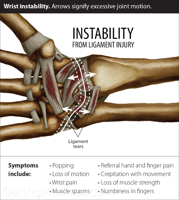 """In this illustration, we can demonstrate that the wrist is held together by a """"sea of ligaments,"""" in which the bones of the wrist and base of the thumb float in. The symptoms of wrist ligament weakness is seen in instability, a popping and cracking noise from the wrist, loss of range of motion, muscle spasms in the arm and hand, loss of strength, especially grip strength and numbness."""