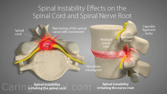 In this image we see the effects of spinal instability on the spinal cord and spinal nerve root. Spinal instability can be caused by many problems including damaged or weakened spinal ligaments.