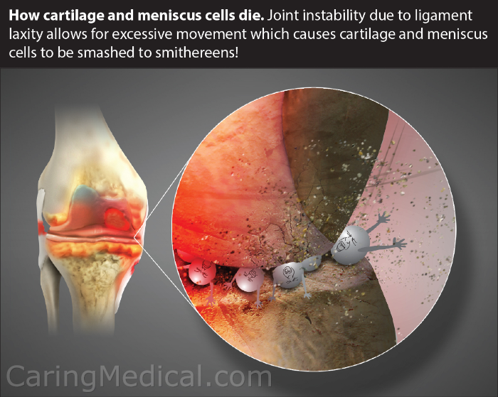 This somewhat lighthearted image helps conceptualize a serious problem in the knee and helps us illustrate the concept behind PRP/hyaluronic acid combo and PRP/Prolotherapy combo treatments. The image talks about ligament laxity. That is weak ligaments that allow for the unnatural grinding, crushing movement of the knee that leads to a bone on bone situation.