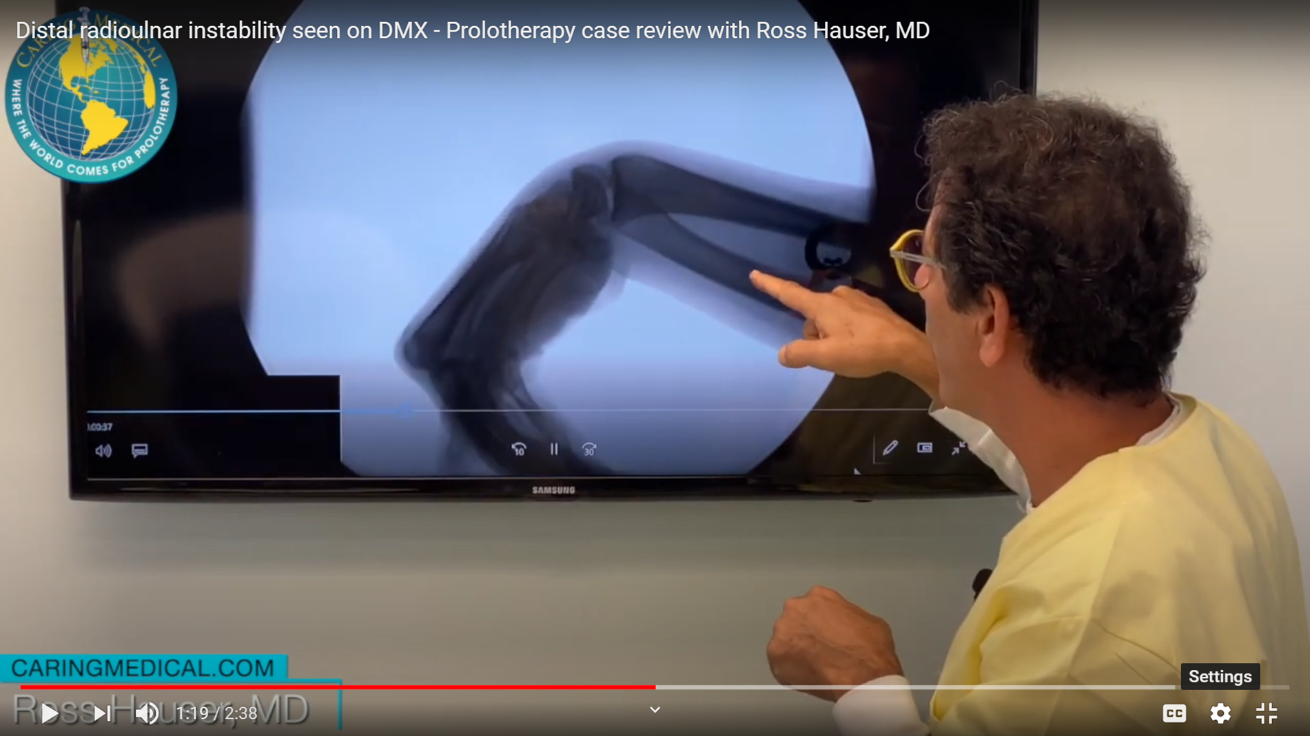 """In this still image from the video, Dr. Hauser demonstrates the abnormal separation of the ulna and radius bones caused by instability at the wrist's distal radioulnar joint. The hand is in """"flexion,"""" the fingers point towards the ground."""