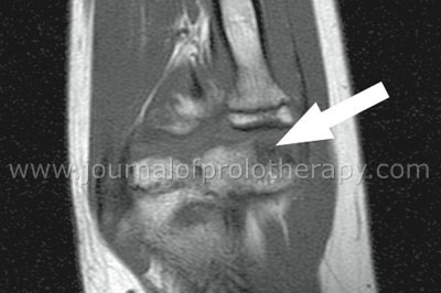 Figure 3. MRI right elbow without contrast, prior to Prolotherapy.The arrow points to the evolving osteochondral defect involving the capitellum typical of osteochondritis dissecans. The defect is stable without evidence of in situ loose body.