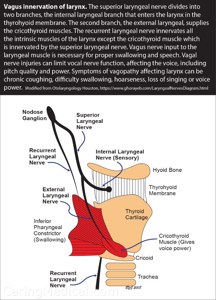 Hiccups, Neck Pain, And Vagus And Phrenic Nerve Injury – Caring Medical  Florida