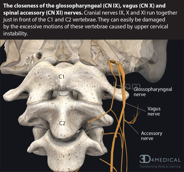 In this image we see the closeness of the glossopharyngeal nerve (CN IX), the main function of which is swallowing, the gag response and movements of the tongue. The Spinal accessory nerves (CN XI) which control the shoulder muscles and head movements, and the Vagus nerve (CN X) which is said to control everything. The Vagus, glossopharyngeal, and spinal accessory nerves can be easily damaged, compressed, and function altered by the excessive motions of the upper cervical vertabrae.