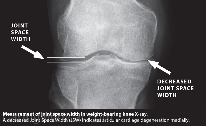 This image is a simple demonstration of the development of a bone on bone knee. The more weight you have above your knee, that is in your belly and butt and thighs, the more pressure on that small area of cartilage trying to keep you from being bone on bone.
