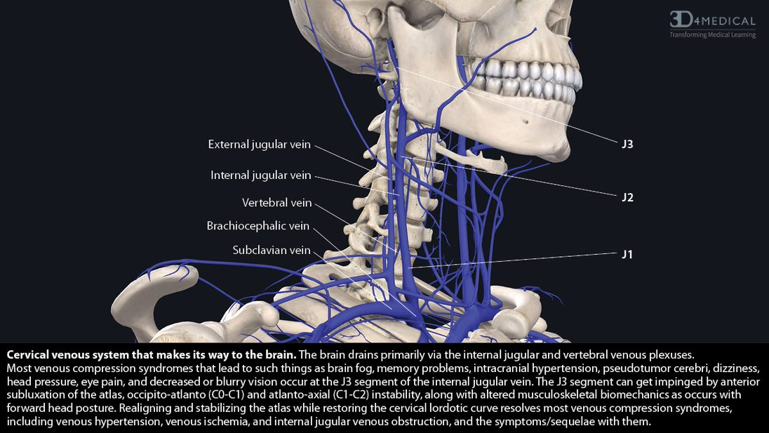In this image we are seeing the veins that make up thecervical venous system. The cervical venous system is part of the brain drainage system or glymphatic system.