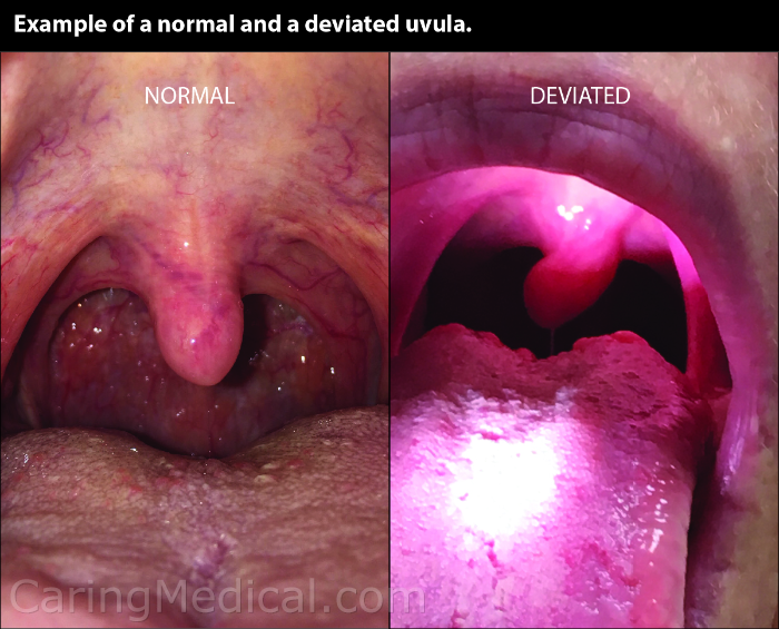 We are seeing a comparison of a normal uvula and a deviated uvula. Here in this image the uvula is pointing to the patient's ride side of the mouth. This is a clue that vagus nerve compression may be suspected in in the different and complex neurological, cardiac, and gastrointestinal problems some people have.