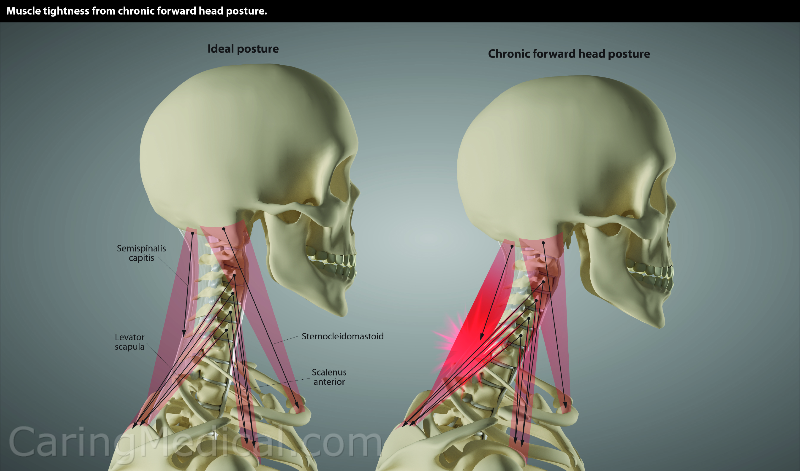 On the left, ideal posture, no stress on the cervical neck muscles. On the right, forward head posture and stress and ultimately spasms in the neck muscles.