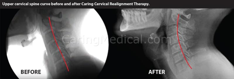 ccrt-before-arter-dmx
