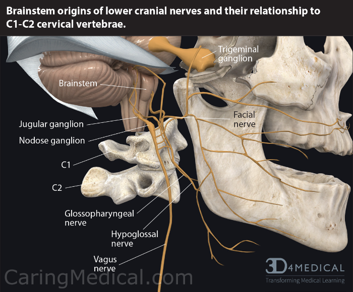 The vast array of neurologic-like, vascular and cardiovascular-like symptoms suffered by patients in whiplash related or cervicomedullary junction degeneration of injury can be explained by examining the position of the brain stem in the cervical spine and how instability at the C1 or C2 levels can cause these bones to start wandering around and compressing nerves, arteries and veins.