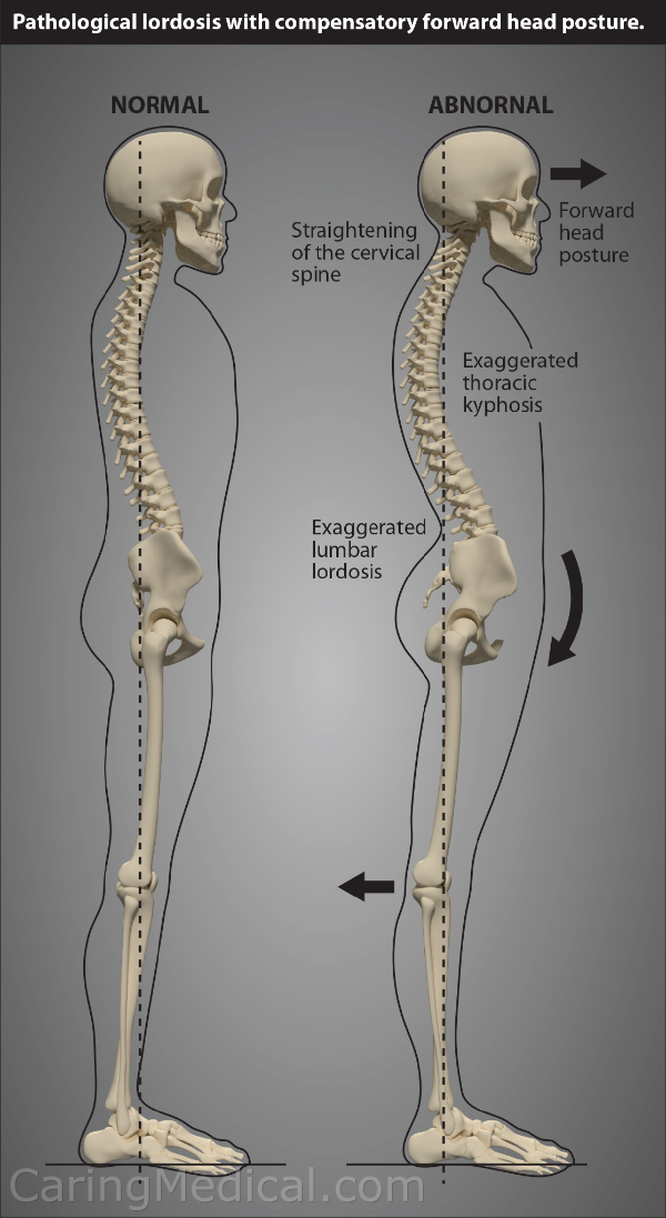 In this image we see that the lumbar spine pushing forward has detrimental effect all the way towards the head.