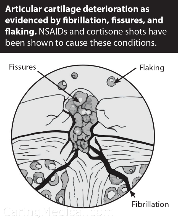 articular cartilage deterioration as evidenced by fibrillation (fraying, splitting and erosion of cartilage), fissures (cracks) and flaking. Cortisone is known to cause this condition.
