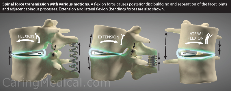 """Spinal force transmission, some people call it strain on the back, are represented with the various motions of the spine. A flexion, bending forward causes the posterior or back portion of the disc to bulge outwards and the fact joint and the """"tail"""" or protrusion of the vertebrae, the spinous process, to pull away from each other. The opposite happens with extension, bending backwards. The same forces apply to banding to the side at the waist."""